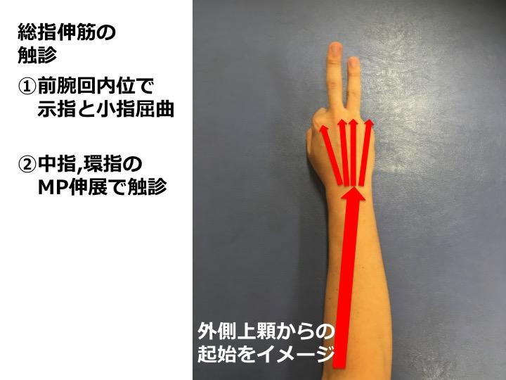伸筋の触診できている? 上腕骨外側上顆炎(テニス肘)の評価と理学療法!